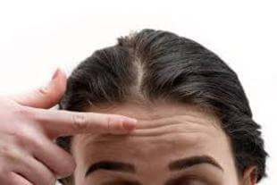 Horizontal Forehead Lines: