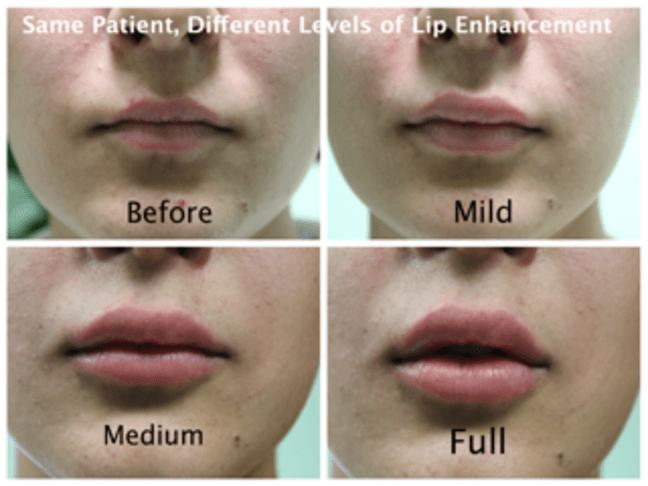 lips931
