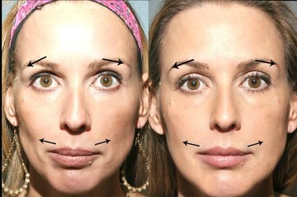 vertical forehead lines treatment