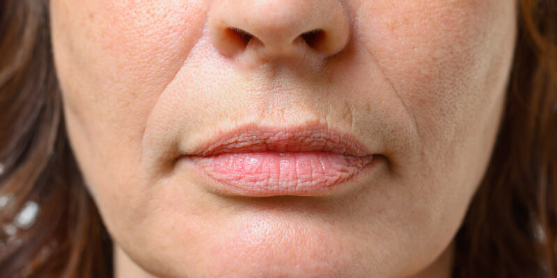 Types Of Lips Lip Lines