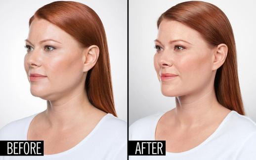 Kybella Injections Double Chin Removal Sherman Oaks