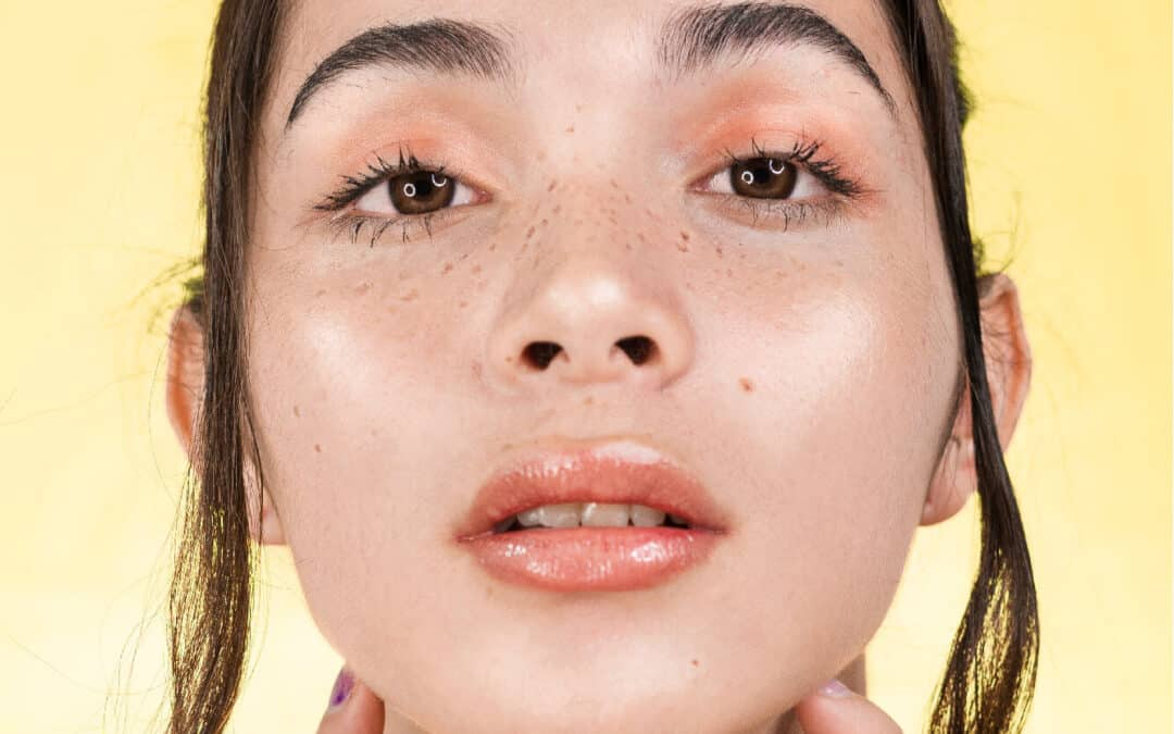 Tear Trough Treatment With Under Eye Filler