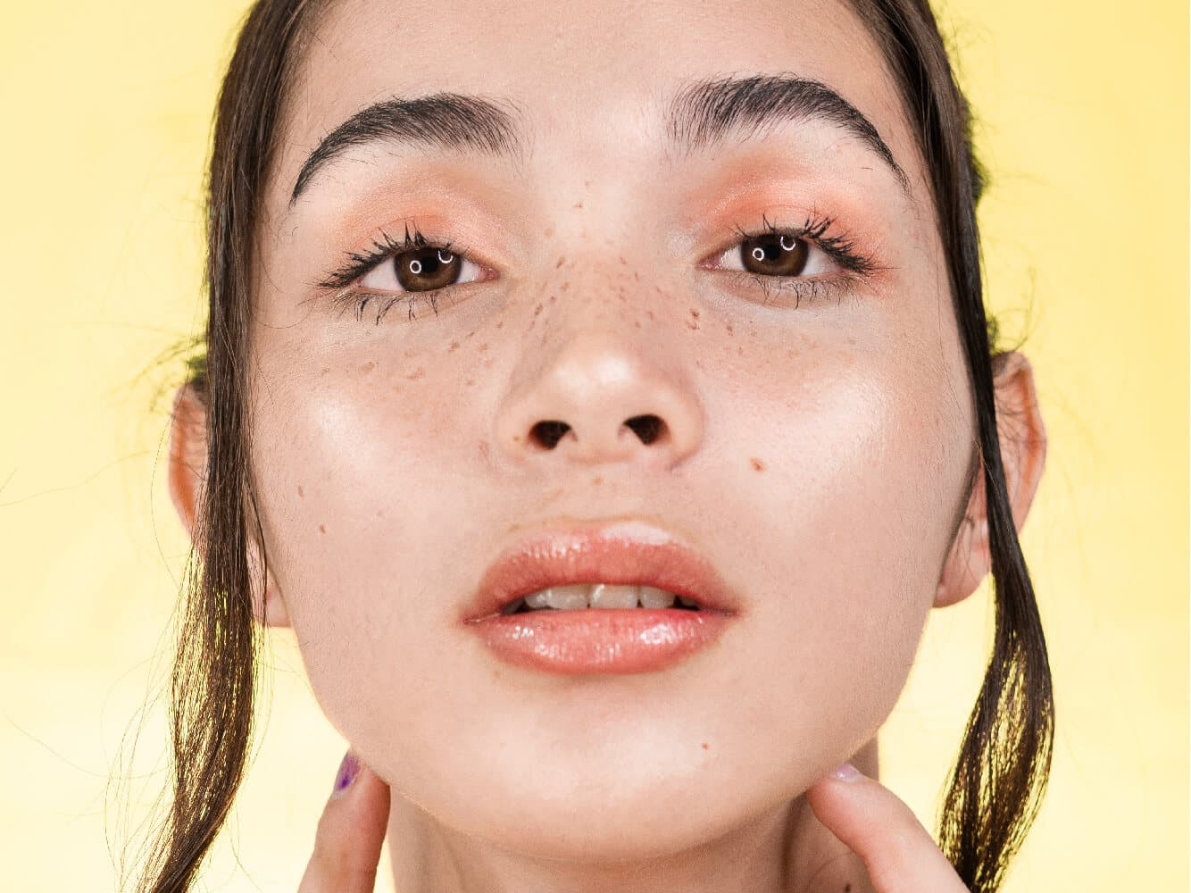 Tear Trough Treatment With Under Eye Filler Image