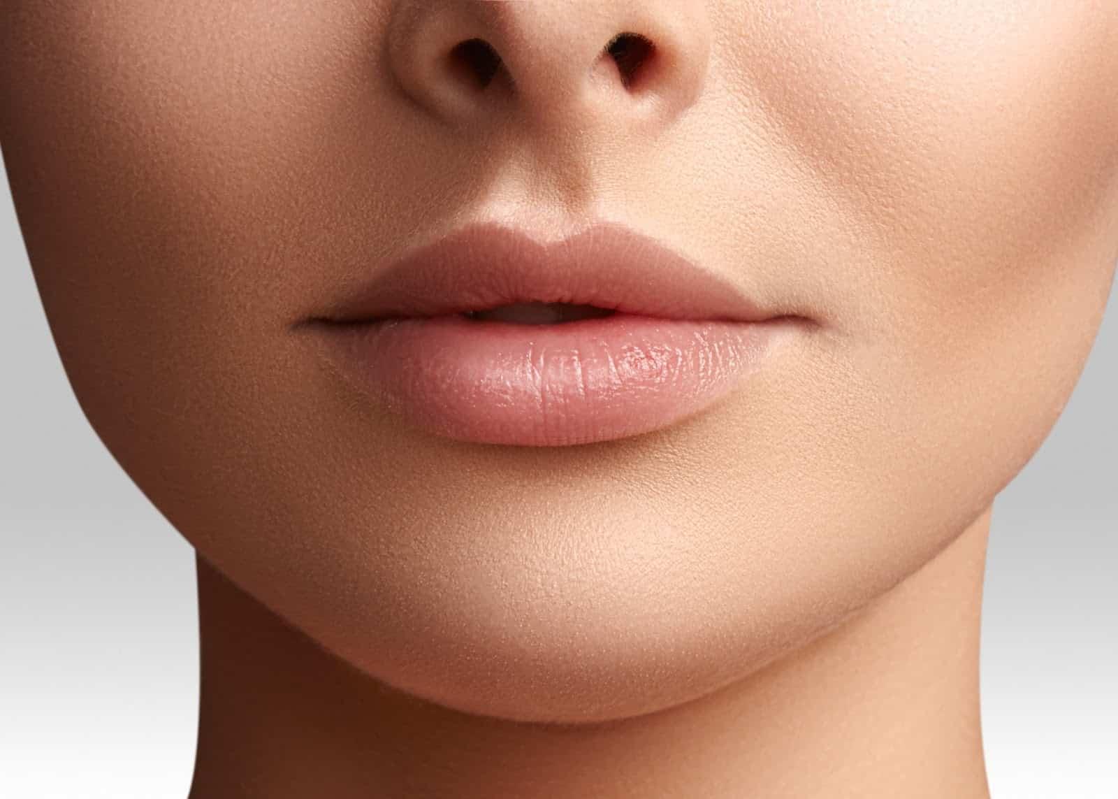 Filler For Lip Lines Image 1