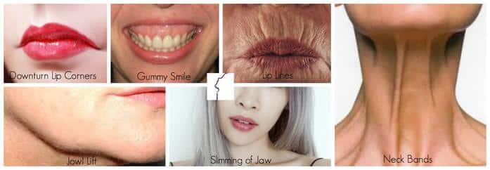 Cosmetic Inejctables Lip And Neck Botox Treatments