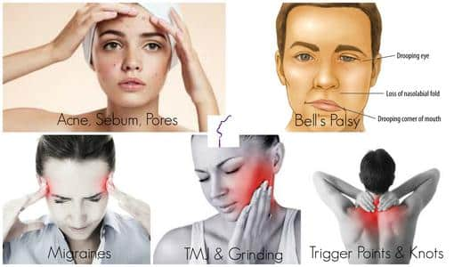 Cosmetic Injectables Aches And Pains Treatments