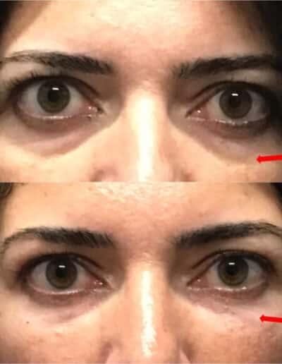 Eye26 579X579 1