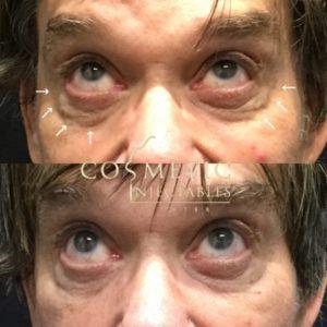 Eye35 1024X1024 640X480 1 300X300 1