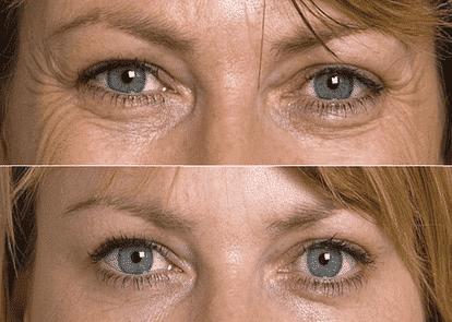 Eyes Uey3 1