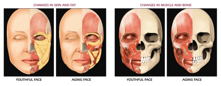 Face Chks Muscle 1