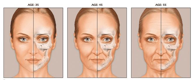 Face Chks Osteopenia 1