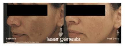 Lasergal3 1