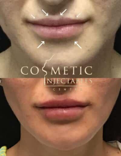 Lips22 579X579 1