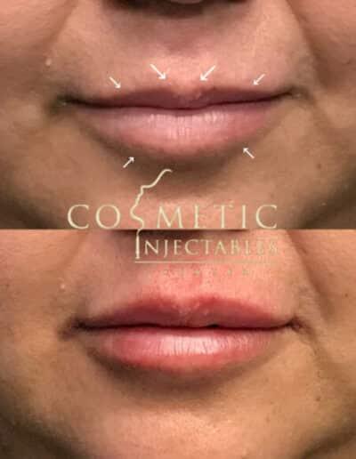 Lips23 579X579 1