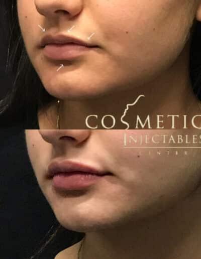 Lips34 579X579 1