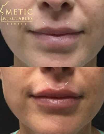 Lips36 579X579 1