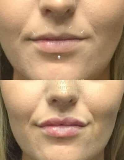 Lips42 579X579 1