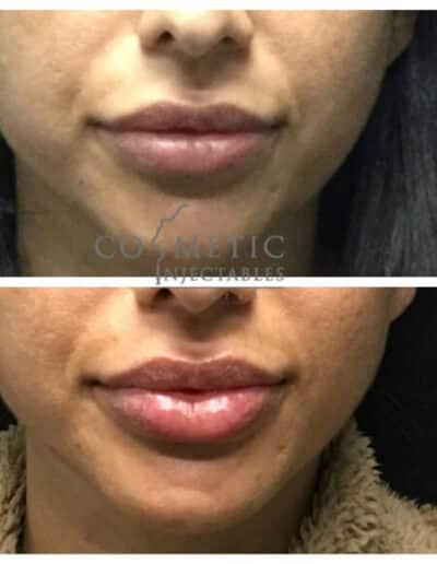 Lips5 579X579 1