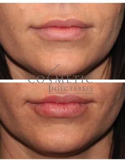 Lips8 579X579 1