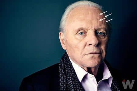 Elder Man Vertical Forehead Lines