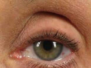 Green Eye Brow Sulcus Hollowing