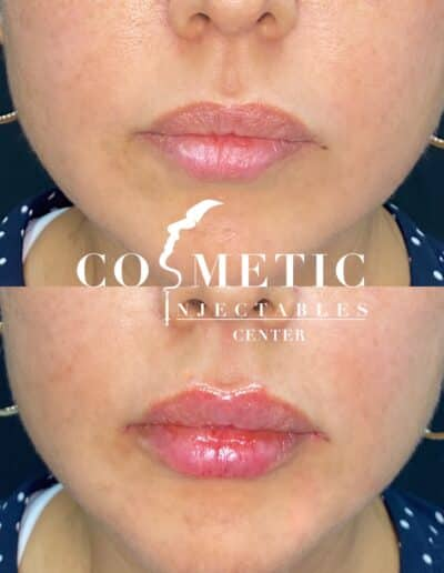 Plump Lips Before And After