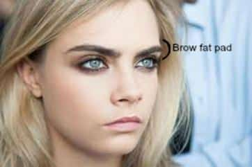 Young Blonde Woman Brow Fat Pad
